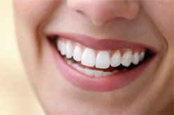 Six Month Smiles and adult orthodontics with a Murray dentist Salt Lake City and Sandy Utah